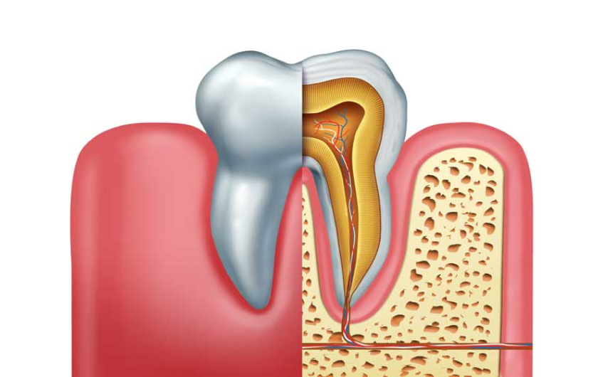 root canal infection signs